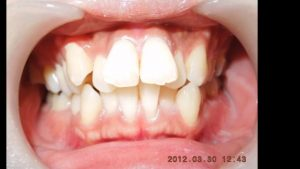 Dental crowding Protruding teeth