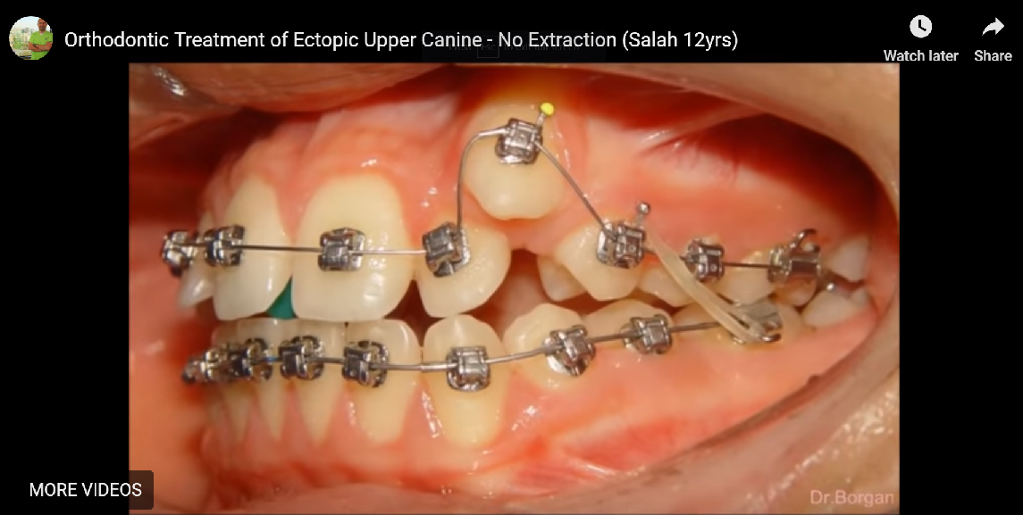Orthodontic Treatment of Ectopic Upper Canine No Extraction 12yrs Before and After
