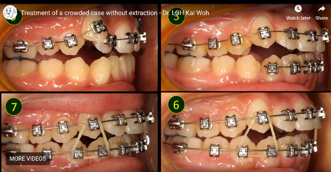 Treatment of a crowded case without extraction Before and After