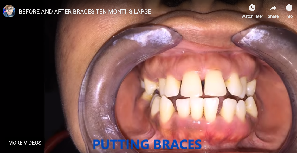BEFORE AND AFTER BRACES TEN MONTHS LAPSE