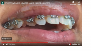 BRACES TIME LAPSE IMPACTED CANINE – BEFORE AND AFTER