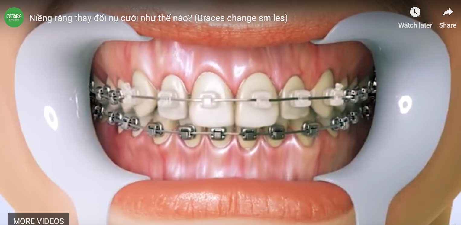 How does braces change smiles? Before and After