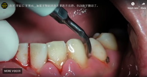 Washing teeth, calculus, periodontal disease If the dentist does not even wash the teeth, you should change the dentist.