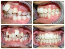 Braces – Before and After (Time Lapse)