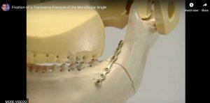 Fixation of a Transverse Fracture of the Mandibular Angle