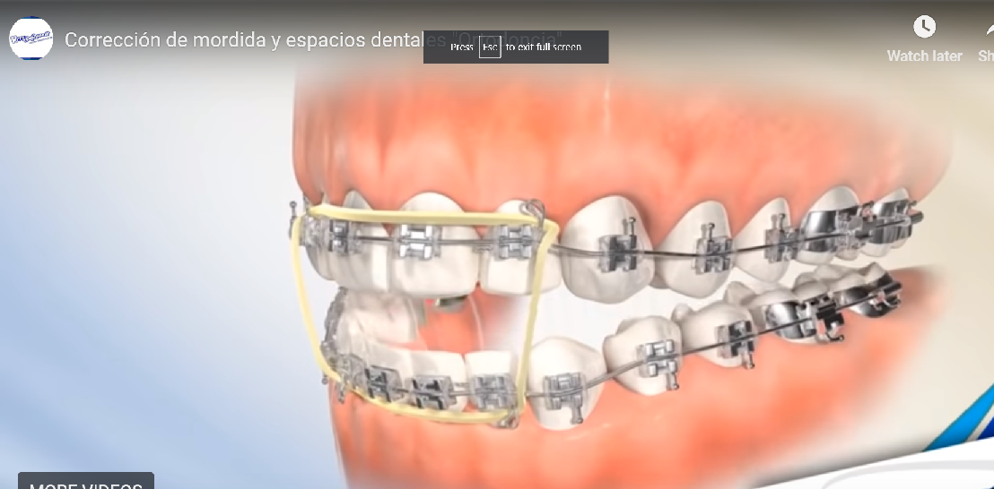 """Correction of Bite and Dental Spaces """"Orthodontics"""