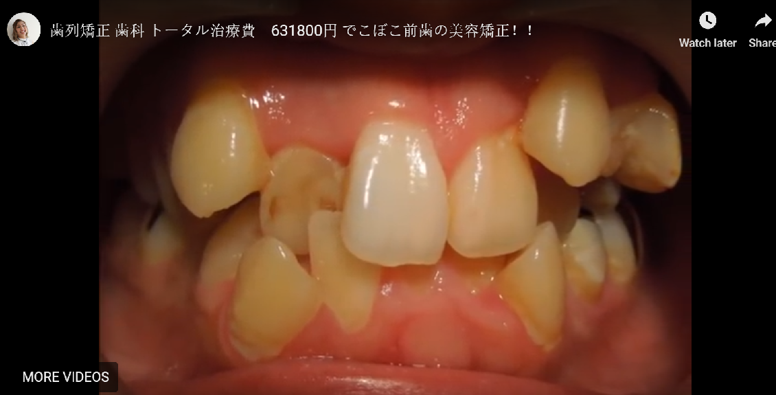 Orthodontic dental treatment Total treatment Aesthetic correction of uneven front teeth!!