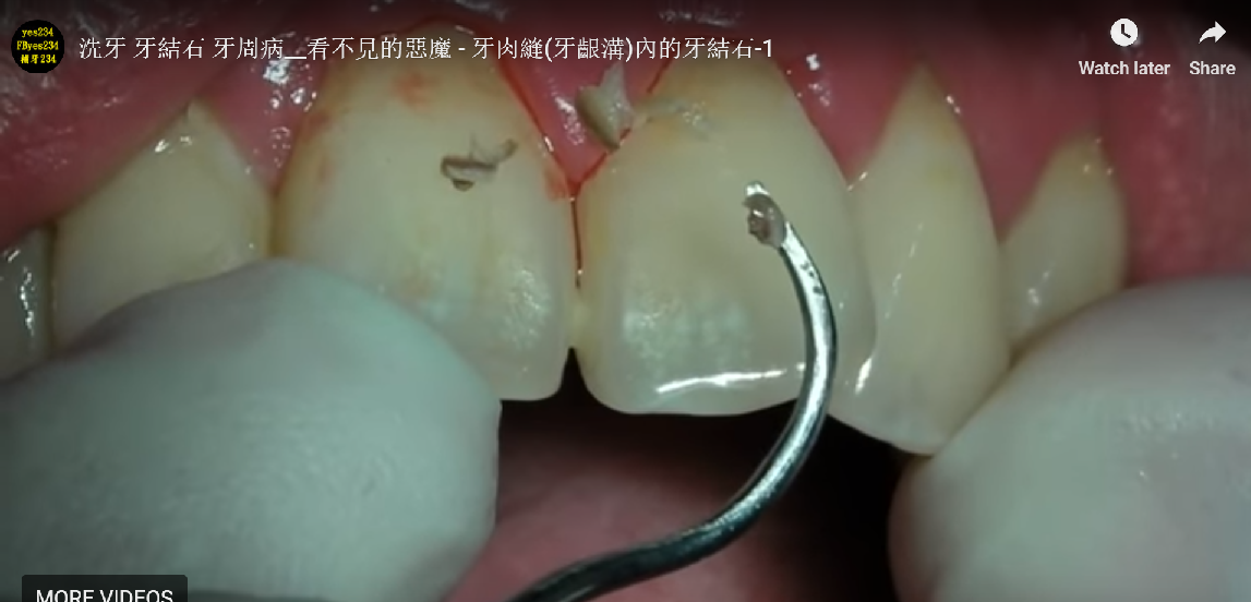 Washing teeth, calculus, periodontal disease __ invisible demon – calculus-1 in the tooth suture (gingival sulcus)