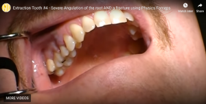 Extraction Tooth #4 – Severe Angulation of the root AND a fracture using Physics Forceps