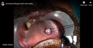 Oral Excisional Biopsy – Palate