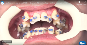 How braces are put on
