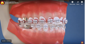 HOW BRACES WORK