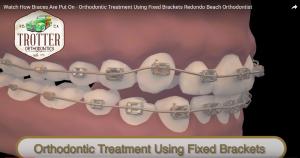 Watch How Braces Are Put On – Orthodontic Treatment Using Fixed Brackets Redondo Beach Orthodontist