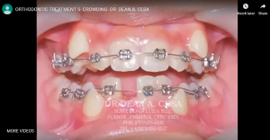 ORTHODONTIC TREATMENT 5- CROWDING
