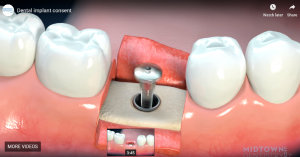 Dental implant consent