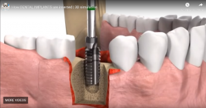 How DENTAL IMPLANTS are inserted