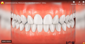COMMON DENTAL PROCEDURES FOR YOUR PERFECT SMILE