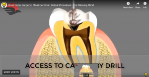 Root Canal Surgery   Most Common Dental Procedure