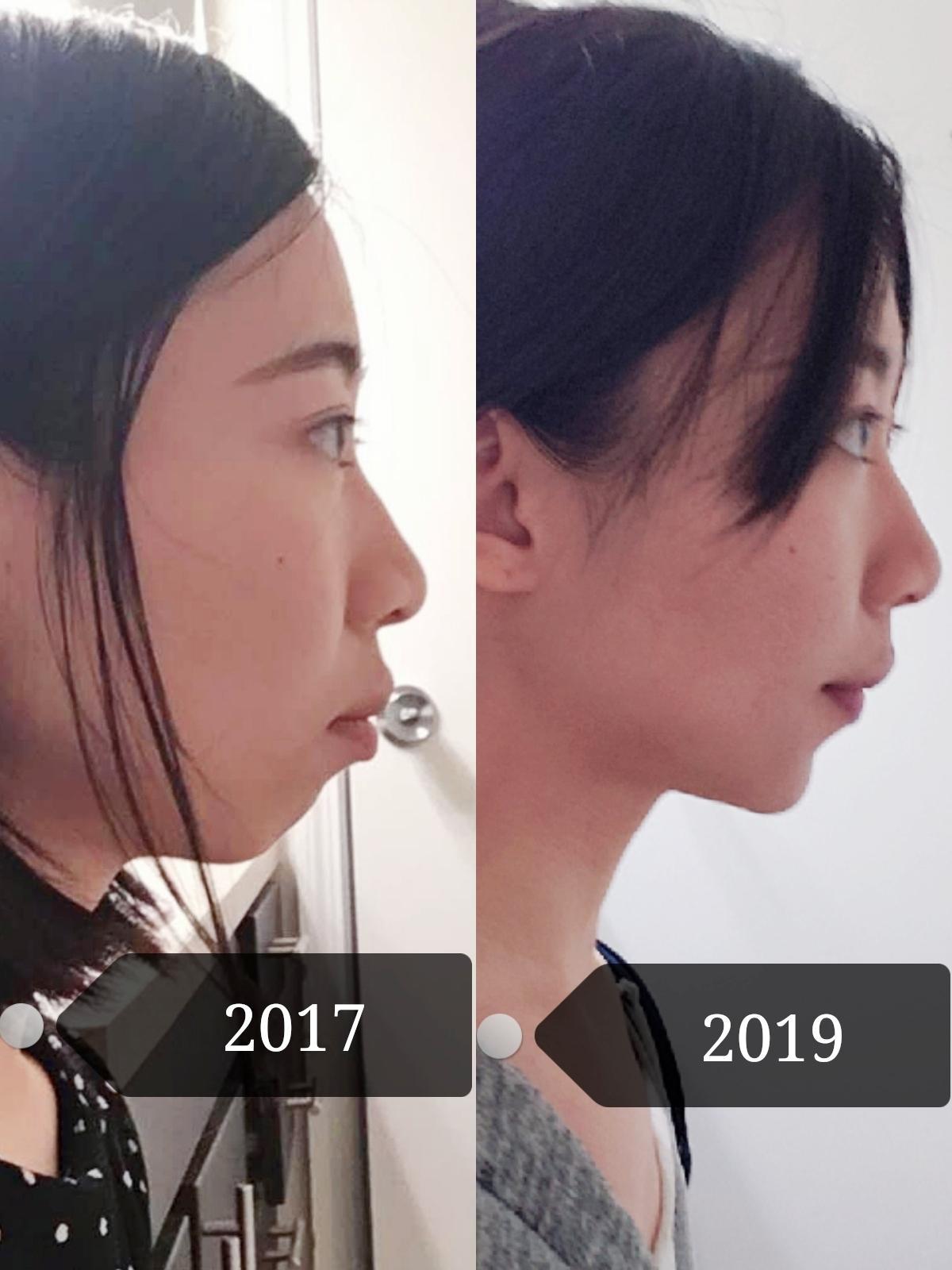 Braces Change Face