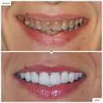 Finding the Right Cosmetic Dentist for You in 3 Step