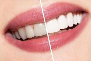 Teeth Whitening - Alfalah Dental Lab & Supply